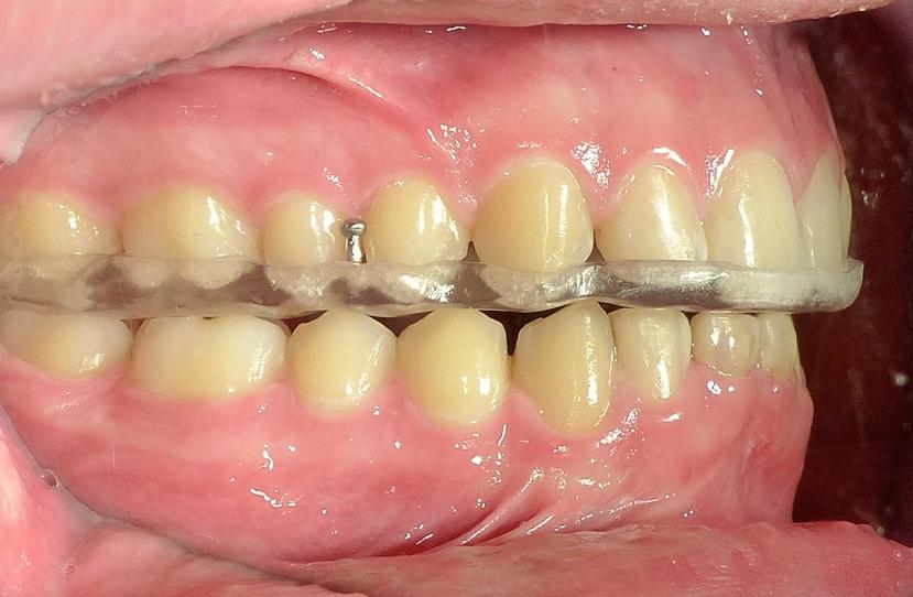 Il Bite a coa serve Blog Dentista San Pietro Dott.ssa Sonia La Volpe