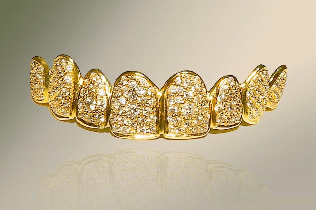 Il dentisa è caro o no? Blog dentista roma San Pietro Dott.ssa Sonia La Volpe