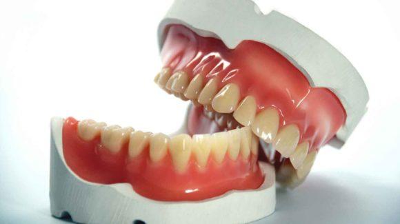 Protesi Rotta: dentista o odontotecnico?
