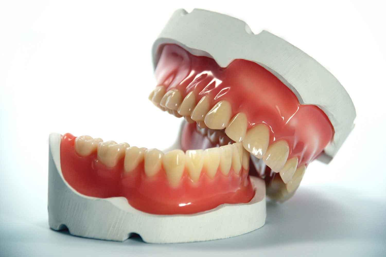 Protesi rotta: dentista o odontotecnico Dott.ssa Sonia La Volpe dentista Roma Via Rizzo
