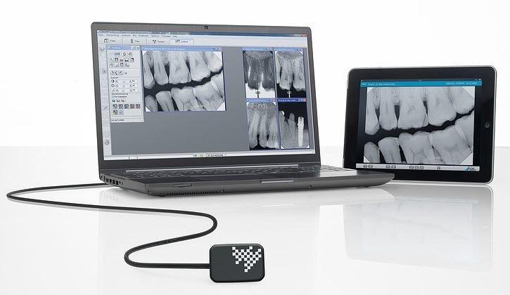 Radiografico Digitale