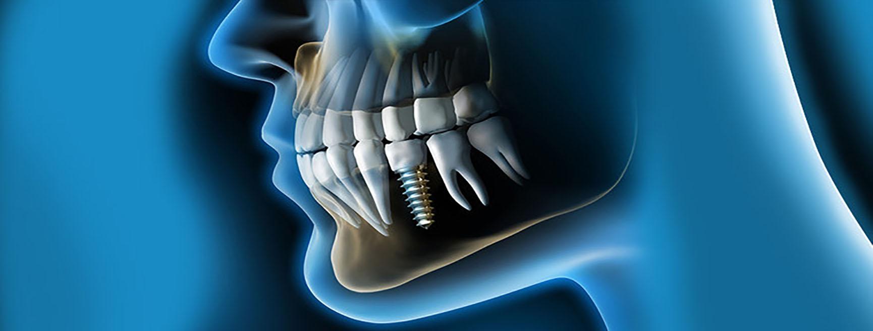 Impianti Studio Dentistico Dott.ssa Sonia La Volpe Roma Parioli