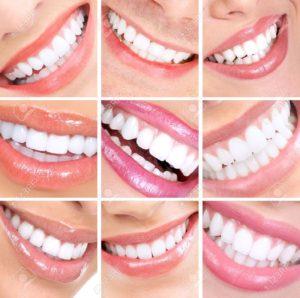 protesi dentale dott.ssa sonia la volpe dentista in roma trionfale