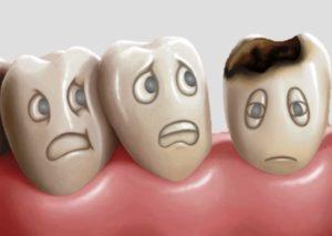 La Carie Studio Dentistico Dott.ssa Sonia La Volpe Roma Ottaviano