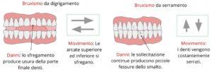 bruxisti odontoiatra Sonia La Volpe Roma Metro Cpro