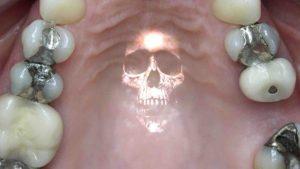 otturazioni amalgama Studio Dentistico Dott.ssa Sonia La Volpe Roma P.le Eroi