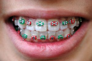 apparecchi Dott.ssa Sonia La Volpe Dentista Via Rizzo Roma