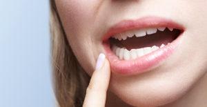 mucosa orale sensibile pazienti Allergici Dott.ssa Sonia La Volpe Parioli Roma