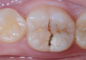 carie studio odontoiatrico Dott.ssa Sonia La Volpe Roma P.le Ero
