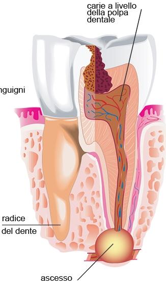 Ascessi e Granulomi