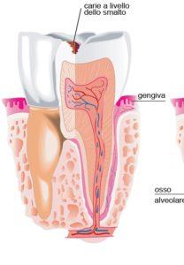 Carie Superficiali Studio Dentistico Dott.ssa Sonia La Volpe Roma Candia