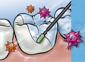 trattamento antcarie al fluoro Dott.ssa Sonia La Volpe