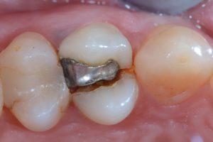Frattura dente Studio Dentistico Dott.ssa Sonia La Volpe Roma Angelo Emo