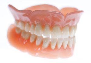 dentiera studio dentistico Dott.ssa Sonia La Volpe Roma Trionfale