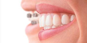 Ortodonzia Adulti e bambini Studio Odontoiatrico dott.ssa Sonia La Volpe Roma Balduina