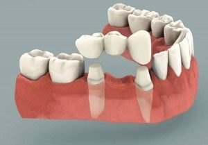 Ponte su denti Dott.ssa Sonia La volpe Dentista in Roma Trionfale