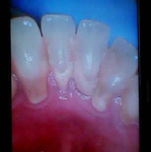 esempi di cura e casi clinici Bio Igiene Orale Studio Dentistico Roma Dott.ssa Sonia La Volpe