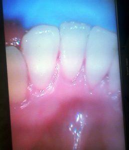 esempi di cura e casi clinici Bio Igiene Orale F Studio Dentistico Roma Dott.ssa Sonia La Volpe
