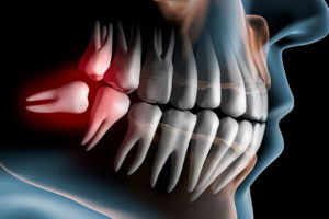 Chirurgia orale Studio Dentistico Dott.ssa Sonia La Volpe Roma Lepanto