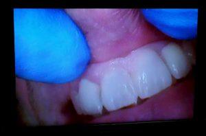 2 esempi di cura e casi clinici diastema dott.ssa sonia La Volpe dentista roma trionfale