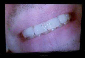3 esempi di cura e casi clinici diastema dott.ssa sonia La Volpe dentista roma trionfale
