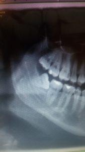 esempi di cure e casi clinici Dott.ssa Sonia La Volpe Roma Trionfale