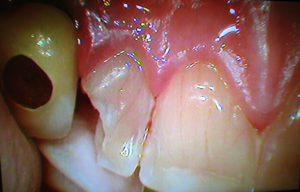 2 esempi di cura e casi clinici frattura dott.ssa sonia La Volpe odontoiatra roma trionfale