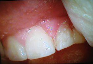 3 esempi di cura e casi clinici frattura dott.ssa sonia La Volpe odontoiatra roma trionfale