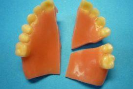 Riparazoni in 1 Ora studio dentistico dott.ssa Sonia La Volpe Roma Trionfale
