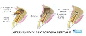 Apicectomia Studio Dentistico Dott.ssa Sonia La Volpe Roma Lepanto