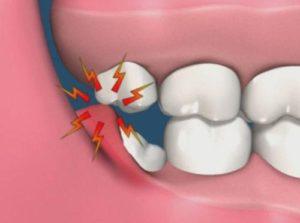 Rimodellamento gengiva Studio Dentistico Dott.ssa Sonia La Volpe Roma Lepanto
