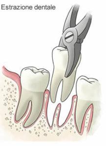 Estrazioni Studio Dentistico Dott.ssa Sonia La Volpe Roma Lepanto