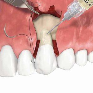 Intervento parodontale Studio Dentistico Dott.ssa Sonia La Volpe Roma Lepanto