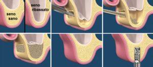 Rialzo del Seno Studio Dentistico Dott.ssa Sonia La Volpe Roma Lepanto