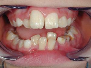 denti accavallati Dott.ssa Sonia La Volpe Odontoiatra Roma Lepanto