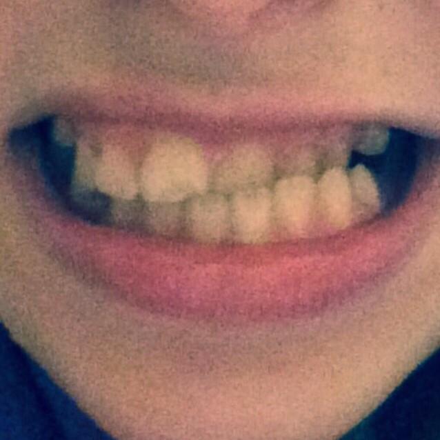 Ortodonzia intercettiva Studio Dentistico dott.ssa Sonia La Volpe Roma Balduina