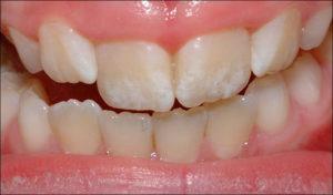 macchie bianche denti Dott.ssa Sonia La Volpe dentista Roma Lepanto