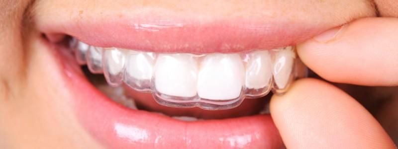 Ortodonzia invisibile studio dentistico dott.ssa Sonia La Volpe Roma Balduina