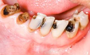 Denti cariati Studio Dentistico Dott.ssa Sonia La Volpe Roma Angelo Emo