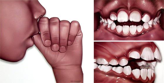 Ortodonzia preventiva bambini Studio Dentistico dott.ssa Sonia La Volpe Roma Balduina