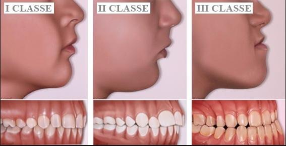 Ortodonzia Studio Dentistico dott.ssa Sonia La Volpe Roma Balduina