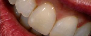 protesi fissa Studi Dentistico Dott.ssa Sonia La Volpe