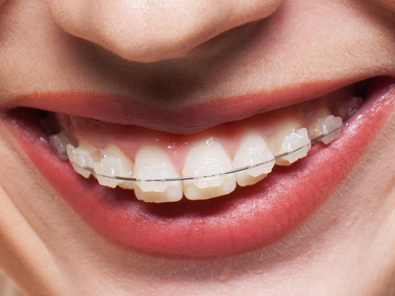 Ortodonzia estetica studio dentistico dott.ssa Sonia La Volpe Roma Balduina