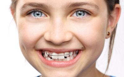 Ortodonzia bambini Studio Odontoiatrico dott.ssa Sonia La Volpe Roma Balduina