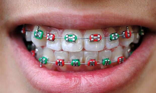 Ortodonzia tradizionale studio dentistico dott.ssa Sonia La Volpe Roma Balduina