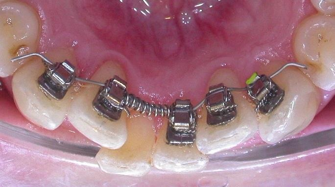 Ortodonzia linguale studio dentistico dott.ssa Sonia La Volpe Roma Balduina