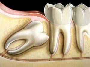 Giudizio inclusi Studio Dentistico Dott.ssa Sonia La Volpe Roma Angelo Emo