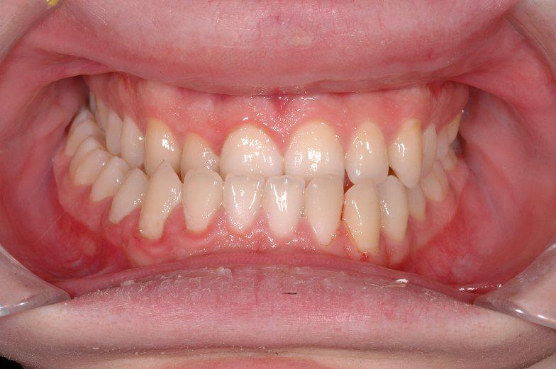 Ortodonzia bambini Studio Dentistico dott.ssa Sonia La Volpe Roma Balduina