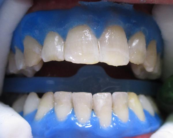 Bio sbiancamento protezione gengive Studio Dentistico Dott.ssa Sonia La Volpe Roma Cipro