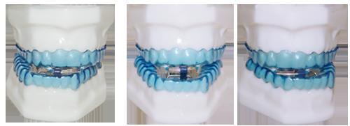 Russatori e Apnoici Studio Dentistico Roma Trionfale Dott.ssa Sonia La Volpe